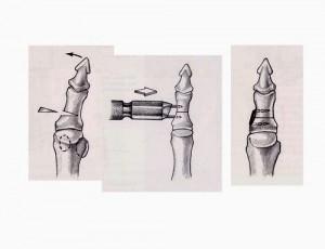 Osteotomie_1ere_phalange