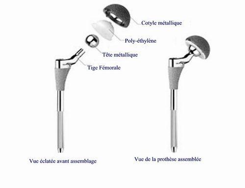 """Résultat de recherche d'images pour """"prothèse totale de hanche"""""""