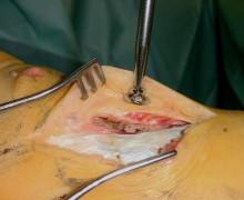 Vue opératoire