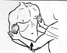 Rupture du Biceps