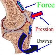 Pression sur la Rotule