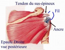 Réinsertion des tendons