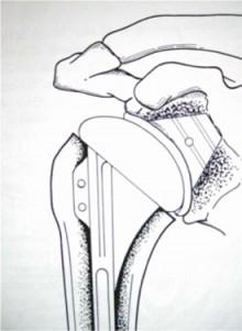 Schéma prothèse