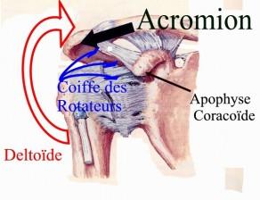 Conflit sous acromial