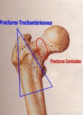 Hanche: Fracture cervicale et Trochantérienne