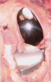 Prothèse Monocompartimentale