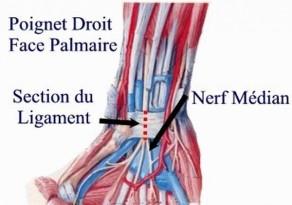 Section du Ligament